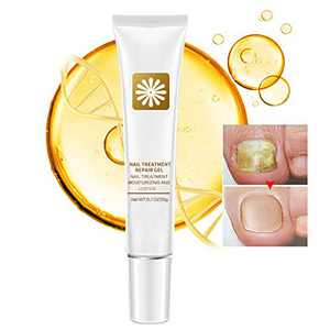 Nail Repair Cream, Natural Fungus Nail Treatment Fingernail and Toenail Repair Cream to Remove Onychomycosis and Restore Appearance of Healthy Toenail Fingernail with High Efficiency